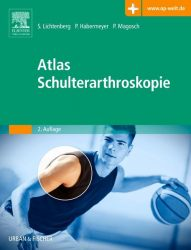 Atlas Schulterarthroskopie